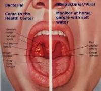 cara mengobati penyakit radang amandel